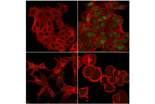 Confocal immunofluorescent analysis of serum-starved MCF7 cells (ERα-positive), either untreated (upper left), stimulated with Human Epidermal Growth Factor (hEGF) #8916 (10 ng/mL, 30 min; upper right), or stimulated with hEGF and post-processed with λ-phosphatase (lower left), using Phospho-Estrogen Receptor α (Ser167) (D5W3Z) Rabbit mAb (green). hEGF-treated SK-BR-3 cells (ERα-negative; lower right) are included as an additional negative control. Actin filaments were labeled with DyLight™ 554 Phalloidin #13054 (red).