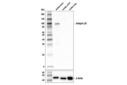 Monoclonal Antibody - Integrin β8 (D1V7M) Rabbit mAb - Western Blotting, UniProt ID Q0VBD0, Entrez ID 320910 #88300