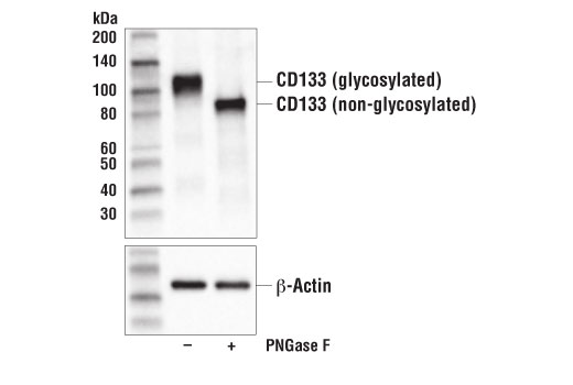 Western blot analysis of extracts from WERI-Rb1 cells, untreated (-) or treated with PNGase F (+), using CD133 (D2V8Q) XP<sup>®</sup> Rabbit mAb (upper) and β-Actin (D6A8) Rabbit mAb #8457 (lower).