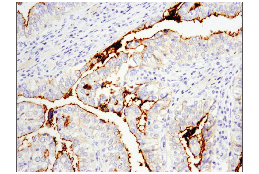 Immunohistochemical analysis of paraffin-embedded human infiltrating papillary carcinoma of the breast using CD133 (D2V8Q) XP® Rabbit mAb performed on the Leica® BOND™ Rx.