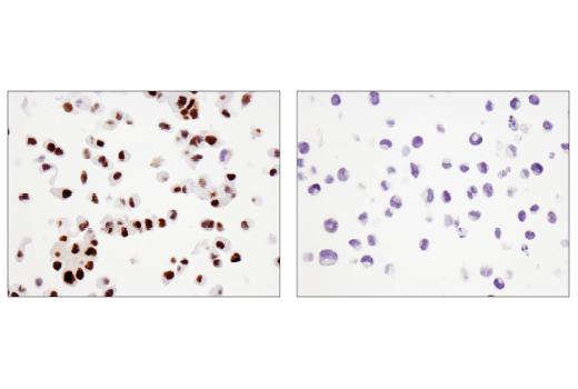Immunohistochemical analysis of paraffin-embedded DU 145 cell pellet (left, positive) or K-562 cell pellet (right, negative) using SLFN11 (D8W1B) Rabbit mAb.