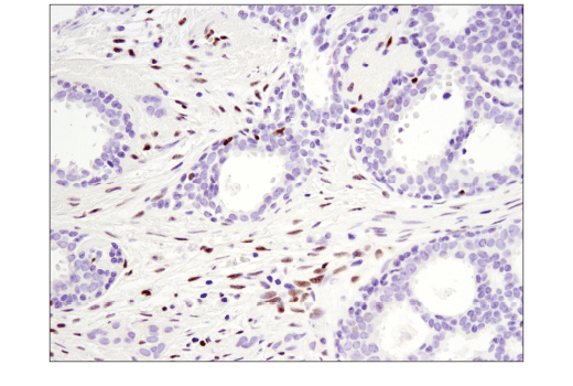 Immunohistochemical analysis of paraffin-embedded human infiltrating ductal carcinoma of the breast using SLFN11 (D8W1B) Rabbit mAb.