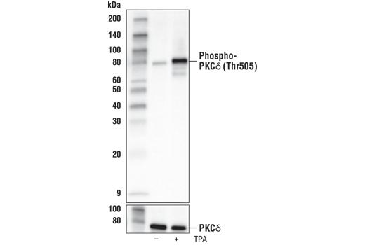 Monoclonal Antibody - Phospho-PKCδ (Thr505) (D8K4R) Rabbit mAb, UniProt ID Q05655, Entrez ID 5580 #93292