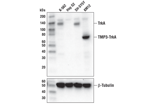 Western blot analysis of extracts from various cell lines using TrkA (D7U3A) Rabbit mAb (upper) or β-Tubulin (D2N5G) Rabbit mAb #15115 (lower).