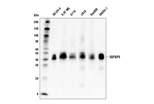 Western blot analysis of extracts from concentrated culture medium of various cell lines using IGFBP3 (D1U9C) Rabbit mAb.