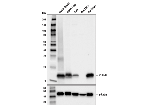 Western blot analysis of extracts from various cell lines and tissues using S100A9 (D3U8M) Rabbit mAb (Rodent Specific) (upper) or β-Actin (D6A8) Rabbit mAb #8457 (lower).