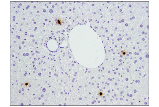 Immunohistochemical analysis of paraffin-embedded mouse liver using S100A9 (D3U8M) Rabbit mAb (Rodent Specific).