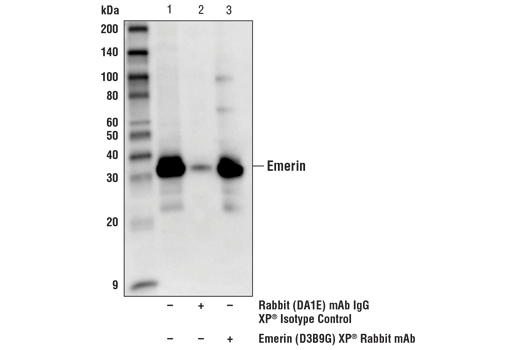 Immunoprecipitation of emerin from HeLa cell extracts using Emerin (D3B9G) XP<sup>®</sup> Rabbit mAb. Lane 1 is 10% input, lane 2 is Rabbit (DA1E) mAb IgG XP<sup>®</sup> Isotype Control #3900, and lane 3 is Emerin (D3B9G) XP<sup>®</sup> Rabbit mAb. Western blot analysis was performed using Emerin (D3B9G) XP<sup>®</sup> Rabbit mAb. Mouse Anti-Rabbit IgG (Conformation Specific) (L27A9) mAb (HRP Conjugate) #5127 was used as the western blot secondary antibody.
