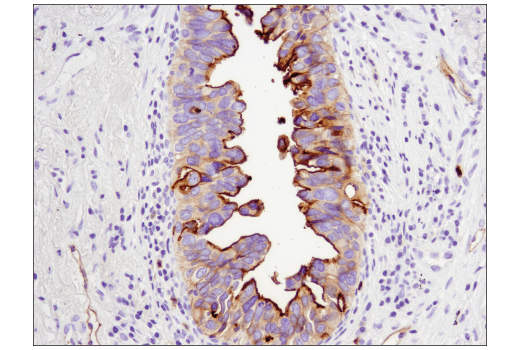 Immunohistochemical analysis of paraffin-embedded human lung carcinoma using CEACAM1 (D3R8O) Rabbit mAb.