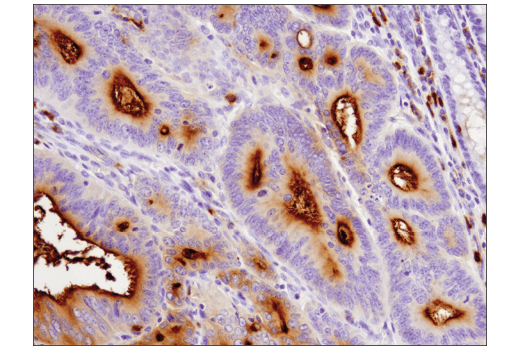 Immunohistochemical analysis of paraffin-embedded human colon carcinoma using CEACAM1 (D3R8O) Rabbit mAb.
