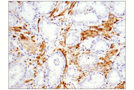 Immunohistochemical analysis of paraffin-embedded human prostate carcinoma using OX40L (D6K7R) Rabbit mAb (IHC Specific).