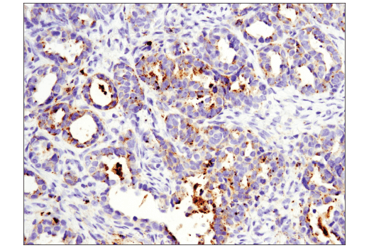 Immunohistochemical analysis of paraffin-embedded human ovarian clear cell adenocarcinoma using OX40L (D6K7R) Rabbit mAb (IHC Specific). Analysis was performed on the Leica<sup>®</sup> Bond™ Rx.