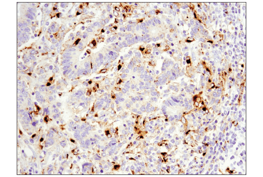Immunohistochemical analysis of paraffin-embedded human colon carcinoma using OX40L (D6K7R) Rabbit mAb (IHC Specific).