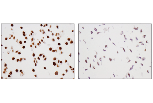 Immunohistochemical analysis of paraffin-embedded MCF7 cell pellet (left, high-expressing) or U2OS cell pellet (right, low-expressing) using TRIM33 (D7U4F) Rabbit mAb.