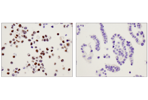 Immunohistochemical analysis of paraffin-embedded HCT-8 cell pellet (left, positive) and COLO 201 cell pellet (right, negative) using c-Myb (D1B9E) Rabbit mAb.