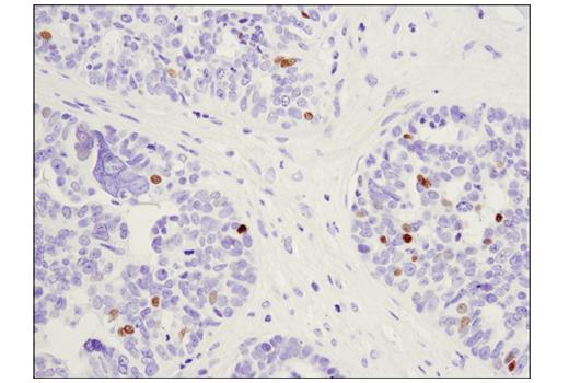 Immunohistochemical analysis of paraffin-embedded human serous papillary carcinoma of the ovary using c-Myb (D1B9E) Rabbit mAb.