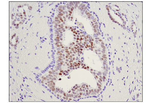 Immunohistochemical analysis of paraffin-embedded human ductal carcinoma of the breast using c-Myb (D1B9E) Rabbit mAb.