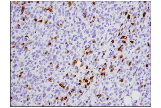 Immunohistochemical analysis of paraffin-embedded 4T1 mammary tumor using PD-1 (D7D5W) XP<sup>®</sup> Rabbit mAb (Mouse Specific).
