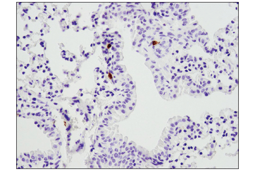 Immunohistochemical analysis of paraffin-embedded mouse lung using PD-1 (D7D5W) XP<sup>®</sup> Rabbit mAb (Mouse Specific).