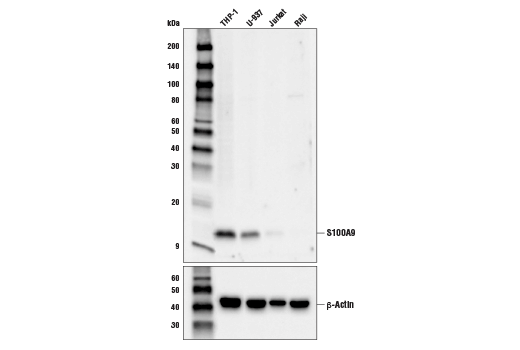 Western blot analysis of extracts from various cell lines using S100A9 (D5O6O) Rabbit mAb (upper) or β-Actin (D6A8) Rabbit mAb #8457 (lower).