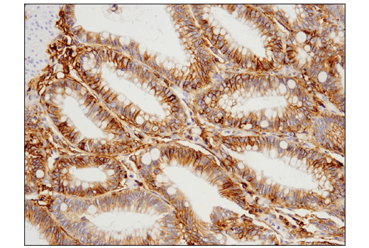 Immunohistochemical analysis of paraffin-embedded human colon carcinoma using 4F2hc/CD98 (D3F9D) XP<sup>® </sup>Rabbit mAb.