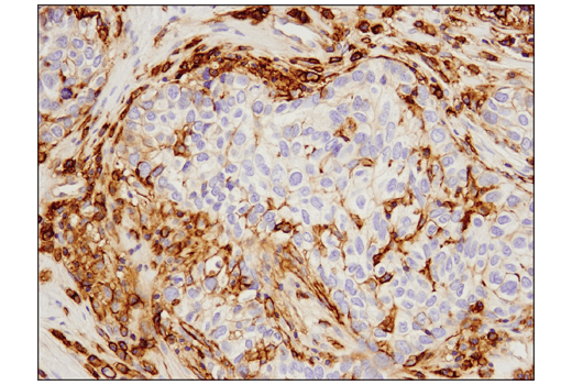 Immunohistochemical analysis of paraffin-embedded human ovarian carcinoma using 4F2hc/CD98 (D3F9D) XP<sup>® </sup>Rabbit mAb.