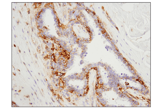 Immunohistochemical analysis of paraffin-embedded human breast carcinoma using 4F2hc/CD98 (D3F9D) XP<sup>® </sup>Rabbit mAb.