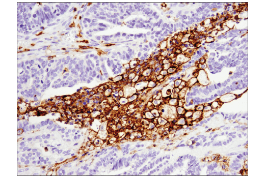 Immunohistochemical analysis of paraffin-embedded human serous papillary carcinoma of the ovary using CD11c (D3V1E) XP<sup>® </sup>Rabbit mAb.