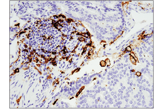 Immunohistochemical analysis of paraffin-embedded human prostate adenocarcinoma using CD11c (D3V1E) XP® Rabbit mAb performed on the Leica® BOND™ Rx.