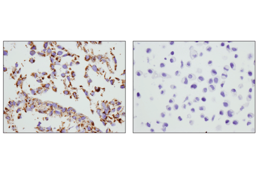 Immunohistochemical analysis of paraffin-embedded C2C12 cell pellet (left, positive) or HeLa cell pellet (right, negative) using COX IV (D6I4K) Rabbit mAb (Rodent Specific).
