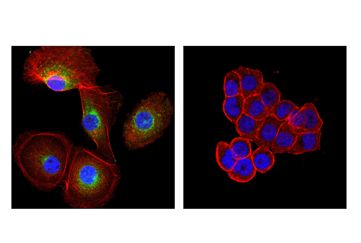 Immunofluorescence Image 1: GAS6 (D3A3G) Rabbit mAb