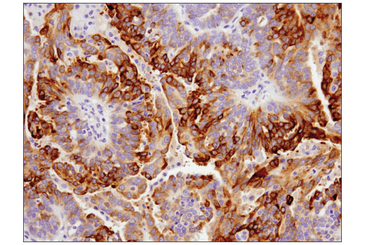 Immunohistochemical analysis of paraffin-embedded human serous carcinoma of the ovary using GAS6 (D3A3G) Rabbit mAb.