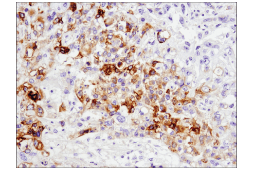 Immunohistochemical analysis of paraffin-embedded human breast carcinoma using GAS6 (D3A3G) Rabbit mAb.