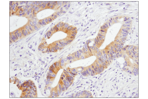Immunohistochemical analysis of paraffin-embedded human colon carcinoma using GAS6 (D3A3G) Rabbit mAb.