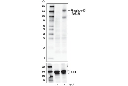 Western blot analysis of extracts from overnight serum-starved H526 cells, untreated or treated with hSCF #8925 (100ng/ml, 5 min; +), using Phospho-c-Kit (Tyr823) Antibody (upper) or c-Kit (D13A2) XP<sup>®</sup> Rabbit mAb #3074 (lower).
