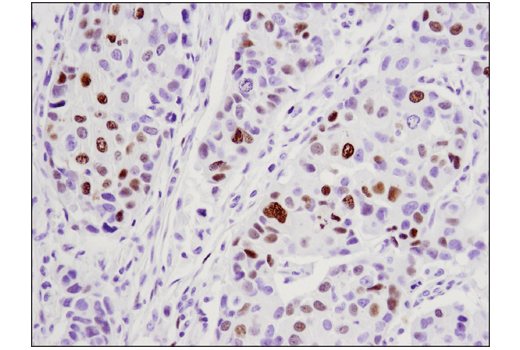 Immunohistochemical analysis of paraffin-embedded human ductal carcinoma of the breast using WT1 (D8I7F) XP<sup>®</sup> Rabbit mAb.