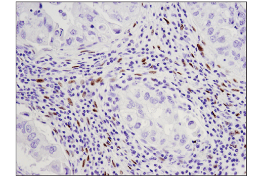 Immunohistochemical analysis of paraffin-embedded human non-small cell lung carcinoma using WT1 (D8I7F) XP<sup>®</sup> Rabbit mAb.