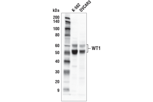 Western blot analysis of extracts from K-562 and OVCAR3 cells using WT1 (D8I7F) XP<sup>®</sup> Rabbit mAb.