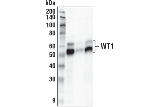 Immunoprecipitation of WT1 from K-562 cell extracts. Lane 1 is 10% input, lane 2 is Rabbit (DA1E) mAb IgG XP<sup>®</sup> Isotype Control #3900, and lane 3 is WT1 (D8I7F) XP<sup>®</sup> Rabbit mAb. Western blot analysis was performed using WT1 (D8I7F) XP<sup>®</sup> Rabbit mAb.