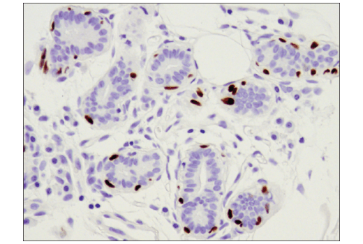 Immunohistochemical analysis of paraffin-embedded human intraductal and infiltrating carcinoma of the breast using p63 (D9L7L) XP<sup>®</sup> Rabbit mAb.
