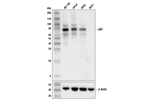 Western blot analysis of extracts from various cell lines cells using p63 (D9L7L) XP<sup>®</sup> Rabbit mAb (upper) or β-Actin (D6A8) Rabbit mAb #8457 (lower).