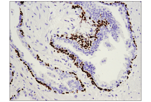 Immunohistochemical analysis of paraffin-embedded human prostate carcinoma using p63 (D9L7L) XP<sup>®</sup> Rabbit mAb.