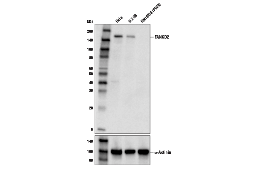 Western blot analysis of extracts fro HeLa, U-2 OS, and GM16633 (PD20, FANCD2-negative) cells using FANCD2 (D5L5X) Rabbit mAb (upper) or α-Actinin (D6S6) Rabbit mAb #6487 (lower).