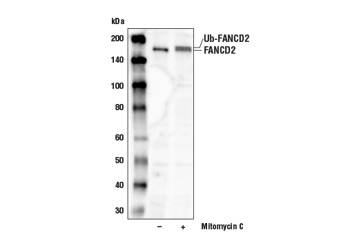 Western blot analysis of extracts from HeLa cells, untreated or treated with mitomycin C (2 μg/mL, 24 hr), using FANCD2 (D5L5X) Rabbit mAb. DNA damage caused by mitomycin C induces monoubiquitination of FANCD2, altering its electrophoretic mobility and increasing its apparent molecular weight (4).