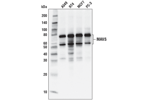 Western blot analysis of extracts from various cell lines using MAVS (D5A9E) Rabbit mAb.