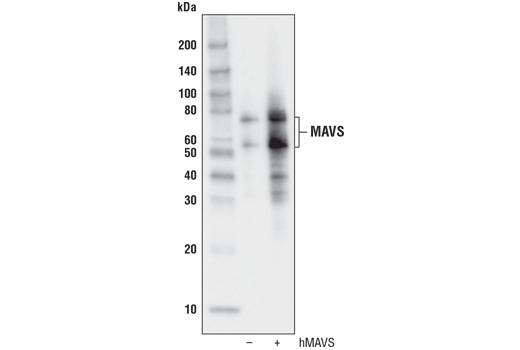 Western blot analysis of extracts from 293T cells, mock transfected (-) or transfected with a construct expressing full-length human MAVS (hMAVS; +), using MAVS (D5A9E) Rabbit mAb.