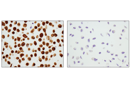Immunohistochemical analysis of paraffin-embedded HeLa cell pellet (left, positive) or PC-3 cell pellet (right, negative) using Stat3 (D1B2J) Rabbit mAb.
