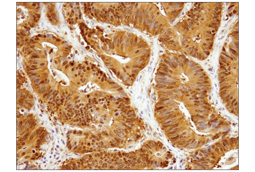 Immunohistochemical analysis of paraffin-embedded human colon carcinoma using Stat3 (D1B2J) Rabbit mAb.