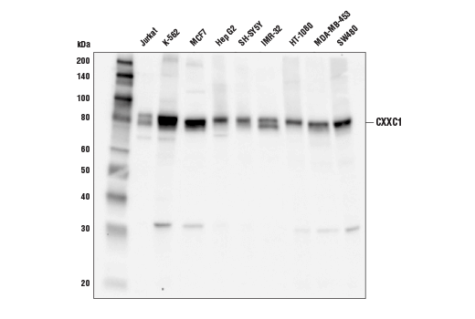 Western blot analysis of extracts from various cell lines using CXXC1 (D1R5R) Rabbit mAb.