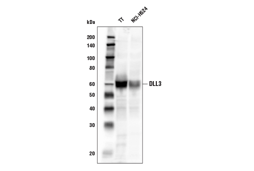 Polyclonal Antibody - DLL3 Antibody - Western Blotting, UniProt ID Q9NYJ7, Entrez ID 10683 #78110 - Developmental Biology